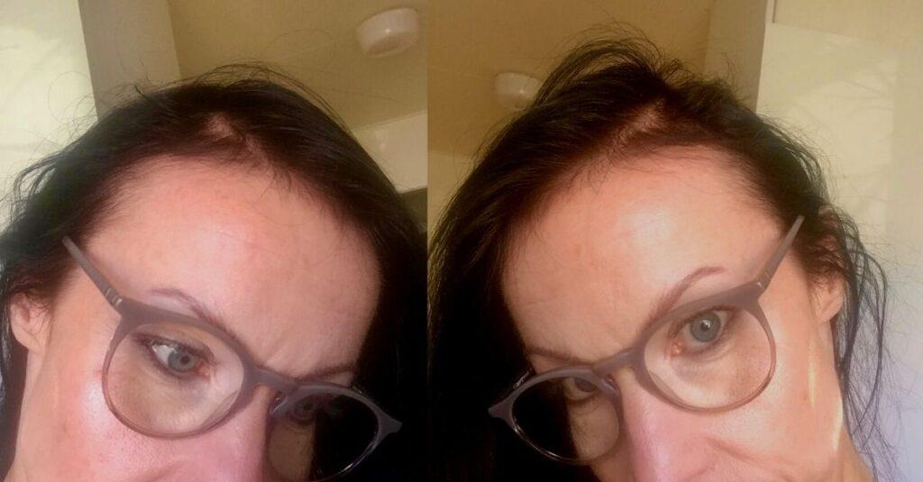 Kosttillskott mot håravfall